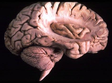 ostrovok-golovnogo-mozga